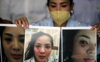 Nindy Ayunda Perlihatkan Bukti Foto Tindak KDRT kepada Wartawan