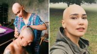 Perjuangan Feby Febiola Melawan Kanker Ovarium