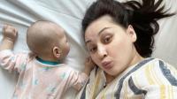 Bayi Mona Ratuliu Berjuang Lawan Dermatitis Atopik