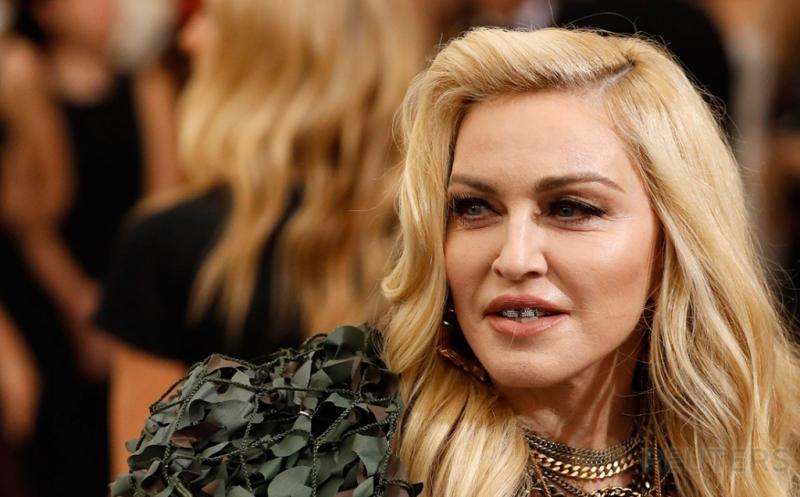 Pesona Gigi Berlian ala Madonna